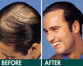 hair implant - Exoderm Medical Centers